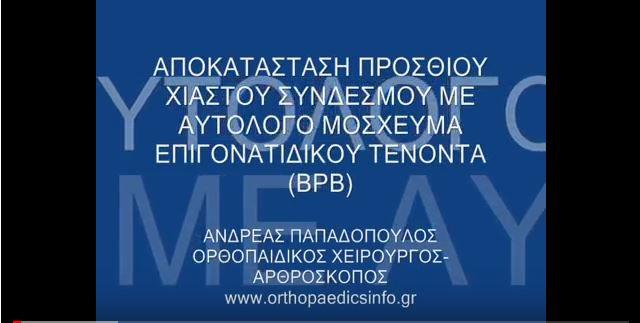 Knee arthroscopy for ACL rupture - Ρήξη προσθίου χιαστού - Αρθροσκόπηση γόνατος