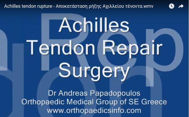 Achilles tendon rupture - Αποκατάσταση ρήξης Αχιλλείου τένοντα