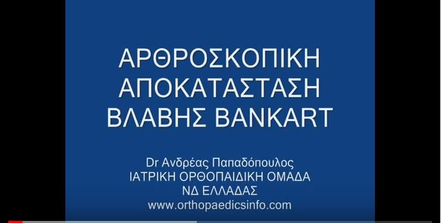 Shoulder Arthroscopy for recurrent dislocations - Εξάρθρημα ώμου - Αρθροσκόπηση ώμου