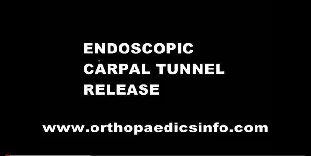 Endoscopic carpal tunnel release - ενδοσκοπική διάνοιξη καρπιαίου σωλήνα