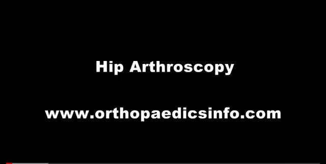 Hip arthroscopy - Αρθροσκόπηση Ισχίου