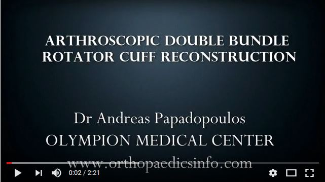 Arthroscopic, double row, rotator cuff reconstruction