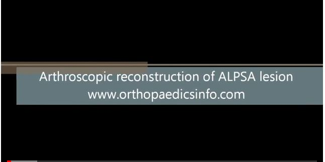 Arthroscopic reconstruction of shoulder instability - Αστάθεια ώμου - orthopaedicsinfo.com