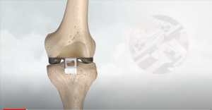 Ολική αρθροπλαστική γόνατος με ρομποτικό σύστημα NAVIO